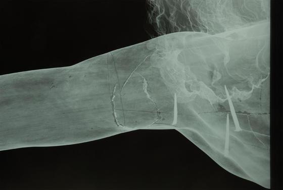 Cristo de los Desamparados, de Martínez Montañés (radiografía de un detalle del brazo).  Foto: IAPH/Eugenio Fernández